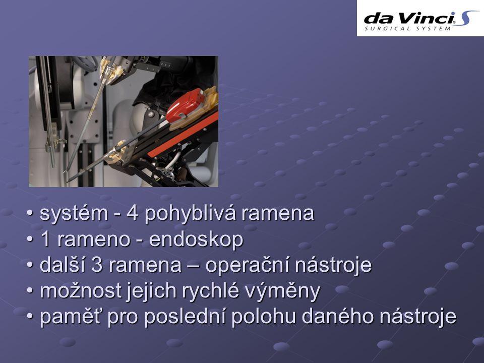 systém - 4 pohyblivá ramena systém - 4 pohyblivá ramena 1 rameno - endoskop 1 rameno - endoskop další 3 ramena – operační nástroje další 3 ramena – op