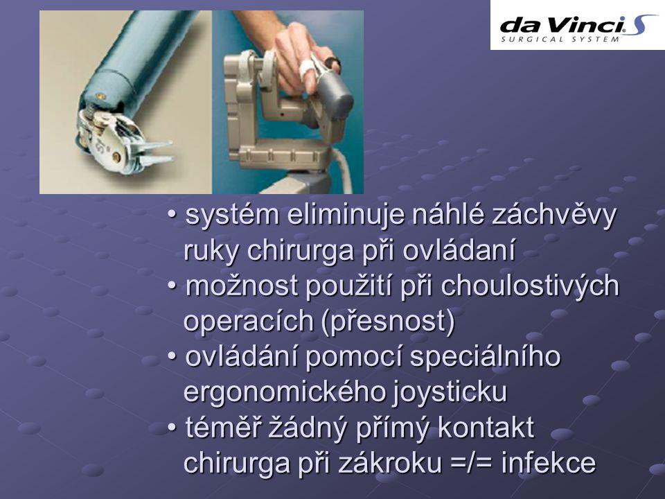 systém eliminuje náhlé záchvěvy systém eliminuje náhlé záchvěvy ruky chirurga při ovládaní ruky chirurga při ovládaní možnost použití při choulostivých možnost použití při choulostivých operacích (přesnost) operacích (přesnost) ovládání pomocí speciálního ovládání pomocí speciálního ergonomického joysticku ergonomického joysticku téměř žádný přímý kontakt téměř žádný přímý kontakt chirurga při zákroku =/= infekce chirurga při zákroku =/= infekce