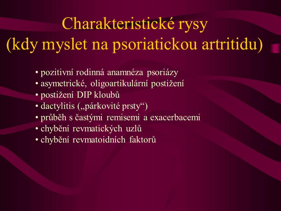 Charakteristické rysy (kdy myslet na psoriatickou artritidu) pozitivní rodinná anamnéza psoriázy asymetrické, oligoartikulární postižení postižení DIP