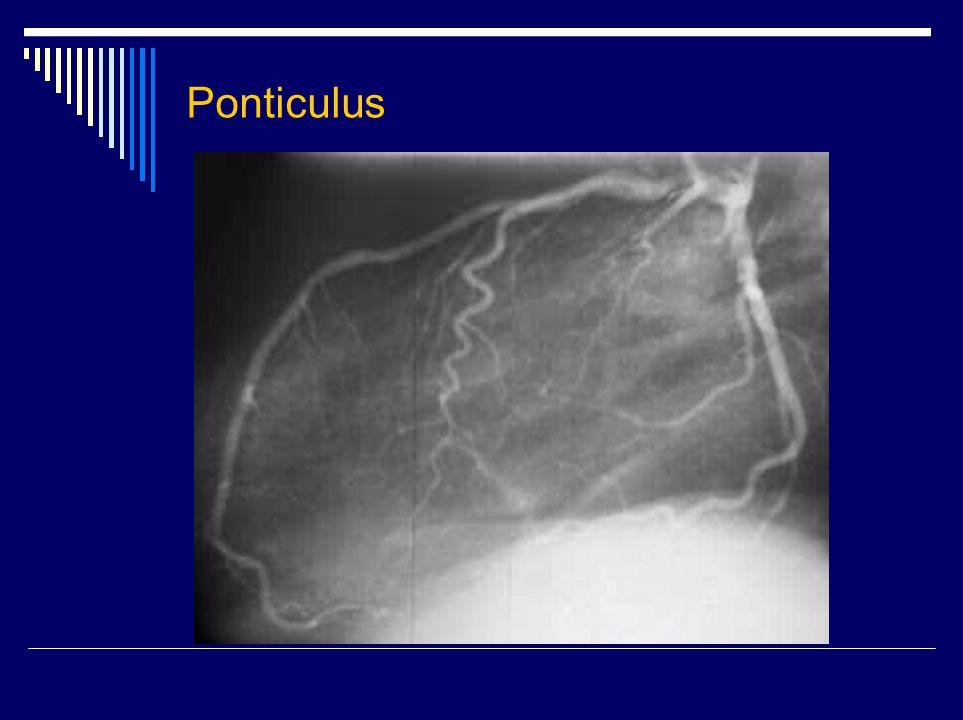Ponticulus