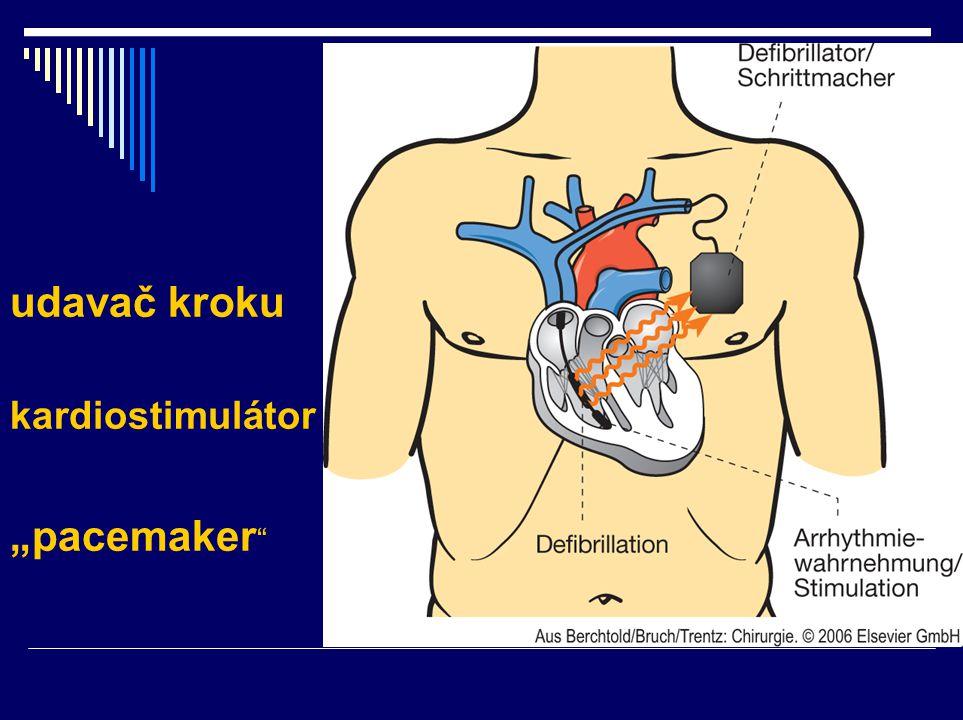 "udavač kroku kardiostimulátor ""pacemaker """