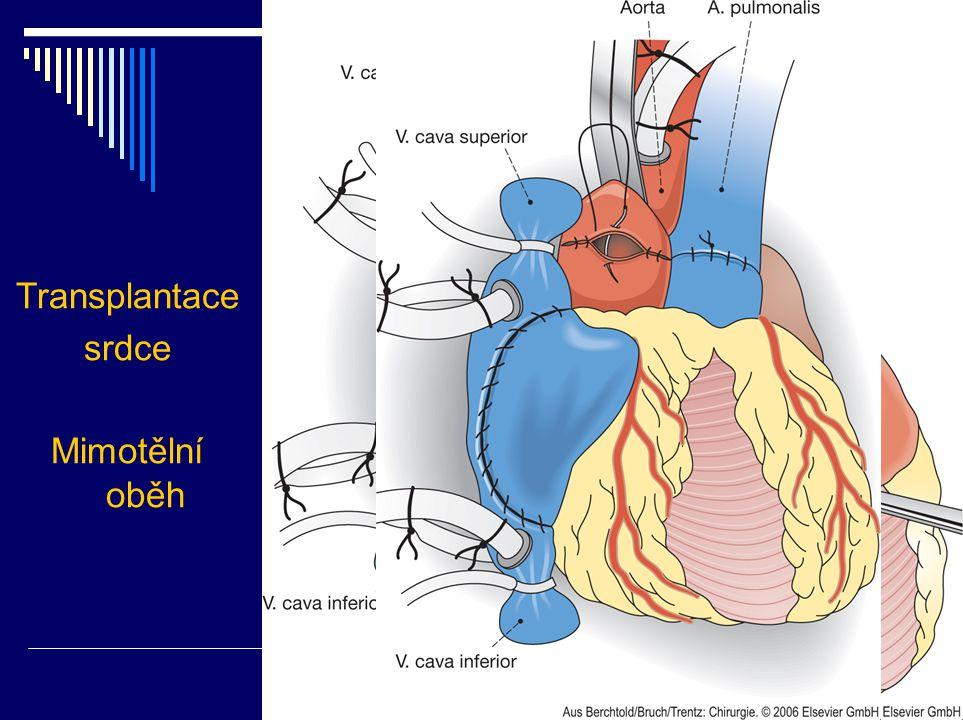 Transplantace srdce Mimotělní oběh