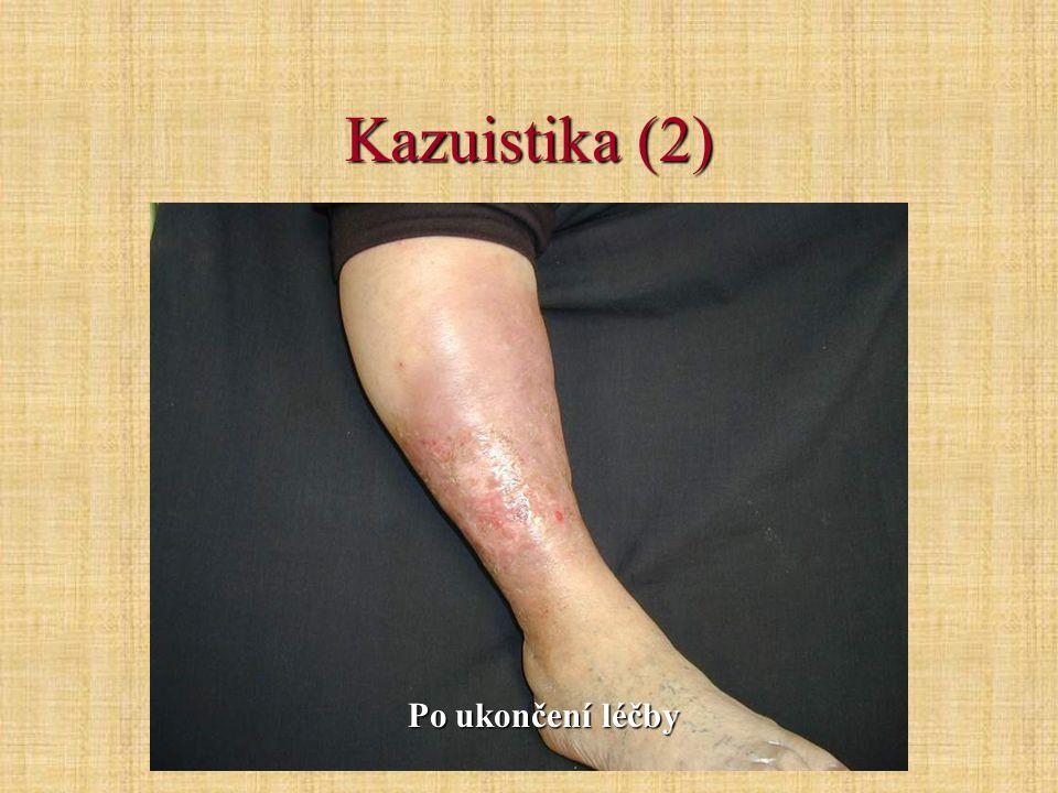 Kazuistika (2) Po ukončení léčby