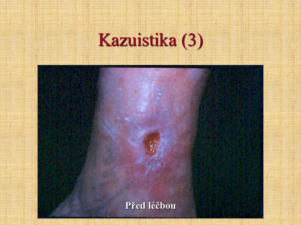Kazuistika (3) Před léčbou