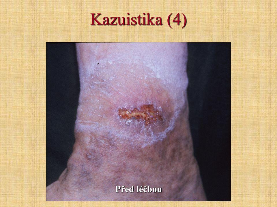 Kazuistika (4) Před léčbou