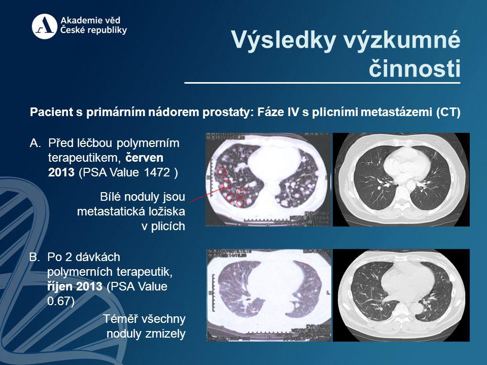Pacient s primárním nádorem prostaty: Fáze IV s plicními metastázemi (CT) Výsledky výzkumné činnosti A.Před léčbou polymerním terapeutikem, červen 2013 (PSA Value 1472 ) Bílé noduly jsou metastatická ložiska v plicích B.Po 2 dávkách polymerních terapeutik, říjen 2013 (PSA Value 0.67) Téměř všechny noduly zmizely