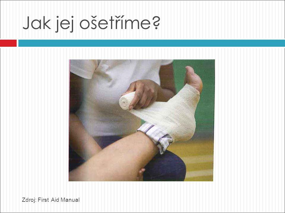 Jak jej ošetříme Zdroj: First Aid Manual