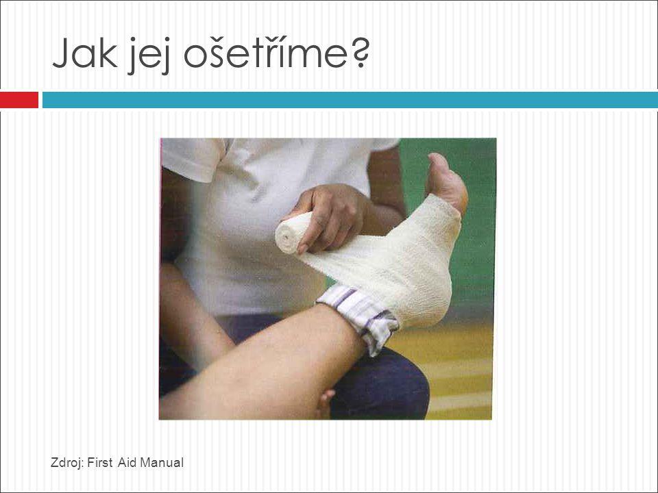 Jak jej ošetříme? Zdroj: First Aid Manual