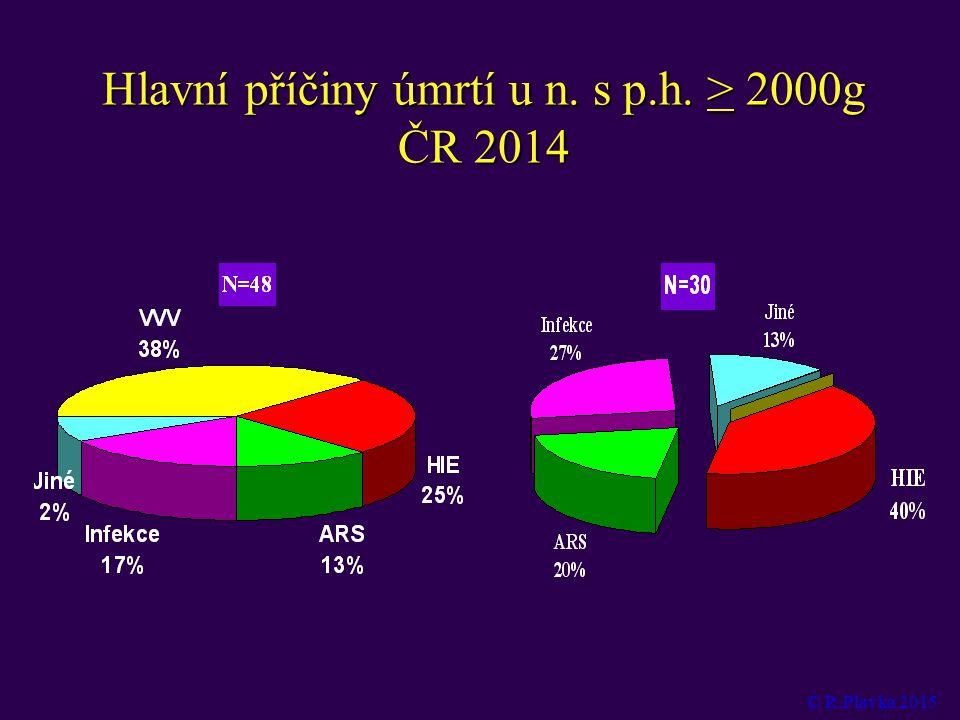 Hlavní příčiny úmrtí u n. s p.h. > 2000g ČR 2014 © R.Plavka 2015