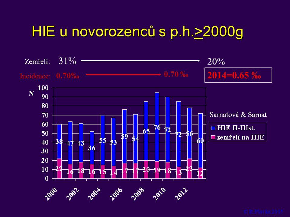 HIE u novorozenců s p.h.>2000g 0.70‰ Zemřelí: 31% 20% Incidence: 2014=0.65 ‰ Sarnatová & Sarnat © R.Plavka 2015