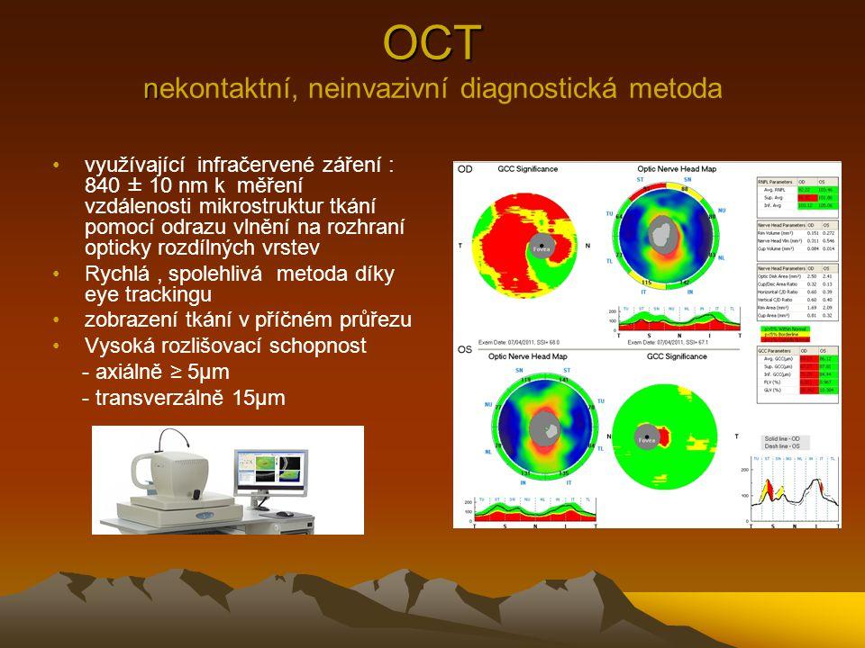 OCT n OCT nekontaktní, neinvazivní diagnostická metoda využívající infračervené záření : 840 ± 10 nm k měření vzdálenosti mikrostruktur tkání pomocí o