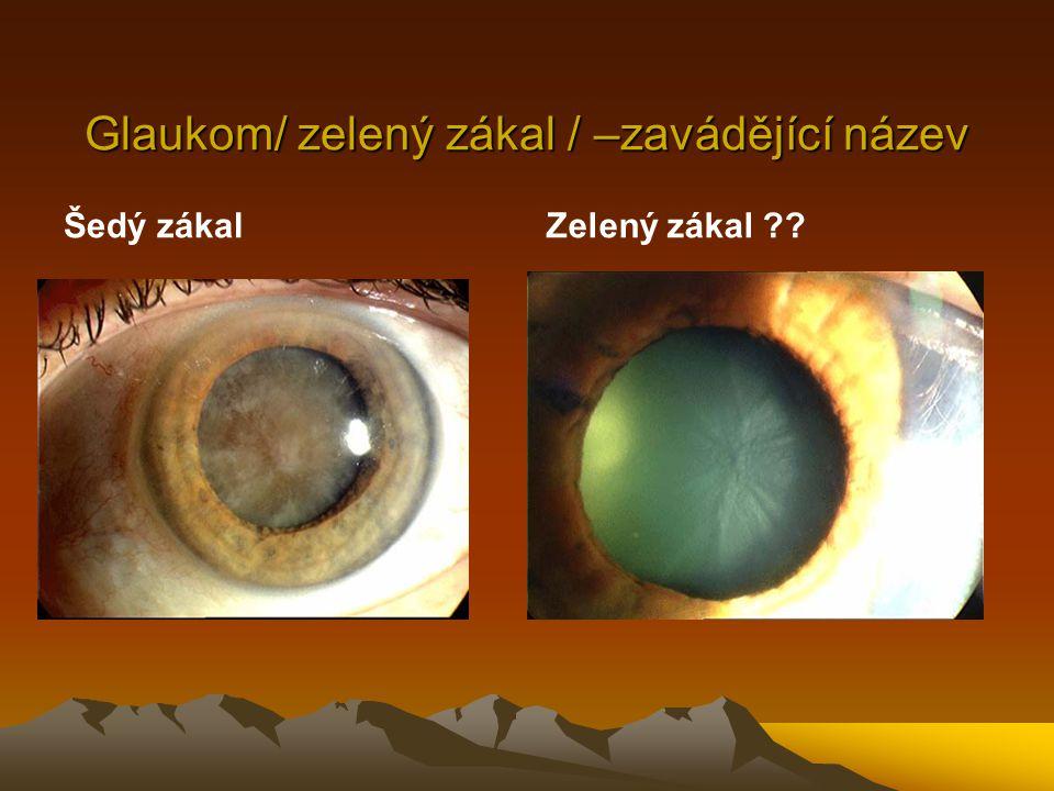 Všeobecná definice glaukomů Glaukomy zahrnují skupinu progresivních optických neuropathií, většinou spojených s vysokým nitroočním tlakem, při nichž dochází k charakteristickému strukturálnímu poškození zrakového nervu, úbytku nervových vláken a k charakteristickým defektům ZP.