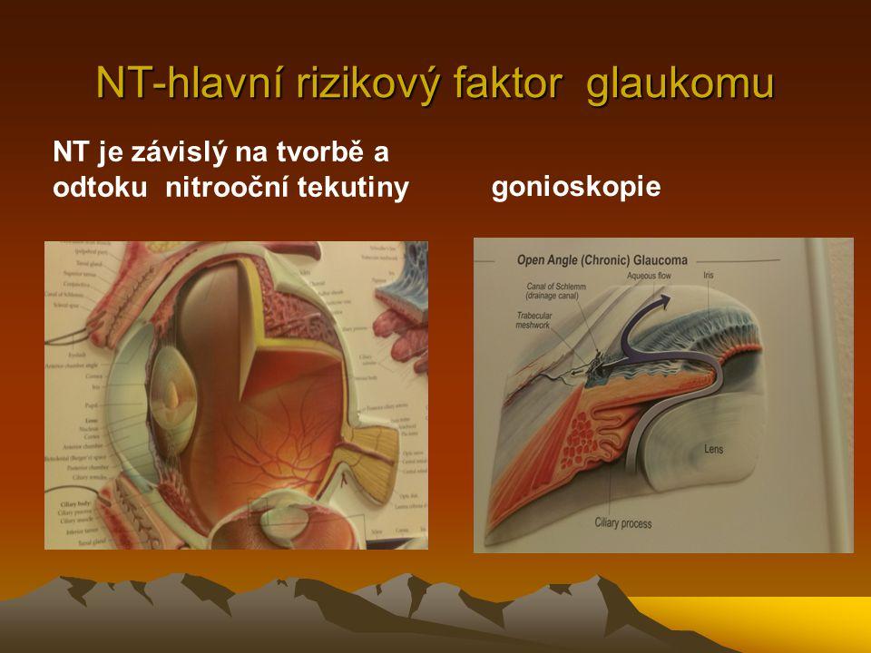 Klasifikace glaukomu Primární - s uzavřeným úhlem - s otevřeným úhlem Sekundární -způsobené očními chorobami / pigmentové, PEX, NV, phakolytický, heterochromie, steroidní glaukom, ghost cell glaucom..
