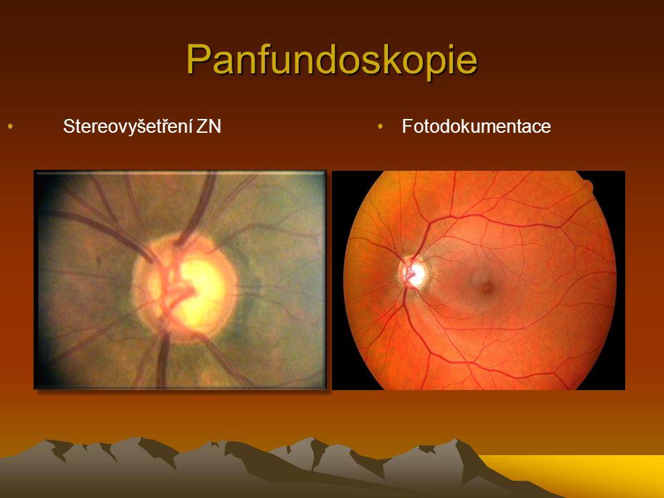 Panfundoskopie Stereovyšetření ZNFotodokumentace