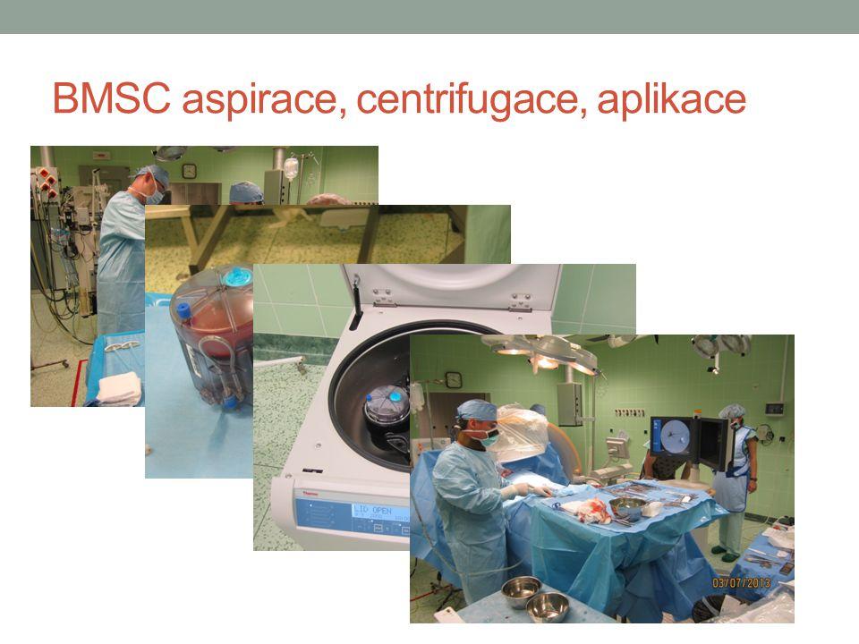 BMSC aspirace, centrifugace, aplikace