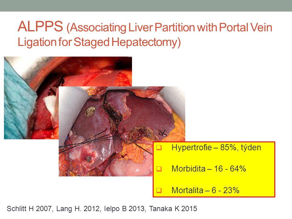 ALPPS (Associating Liver Partition with Portal Vein Ligation for Staged Hepatectomy)  Hypertrofie – 85%, týden  Morbidita – 16 - 64%  Mortalita – 6
