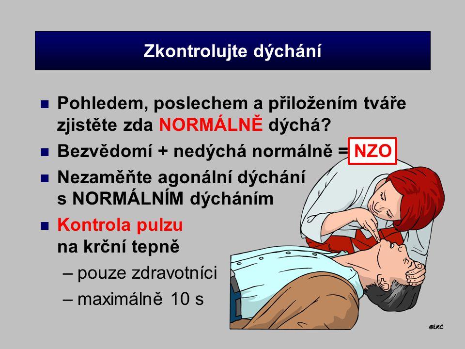 Zkontrolujte dýchání n Pohledem, poslechem a přiložením tváře zjistěte zda NORMÁLNĚ dýchá? n Bezvědomí + nedýchá normálně = NZO n Nezaměňte agonální d