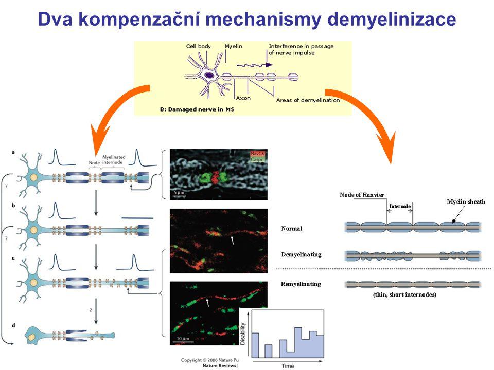Neurofyziologické koreláty u roztroušené sklerózy 13