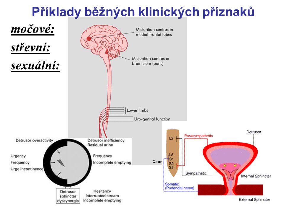 21 motorické: l akutní – subaktuní rozvoj (dny) / pomalu rozvinutá l mono-/hemi-/tri-/para-/kvadru- l - paréza / plegie l společně s příznaky postižen