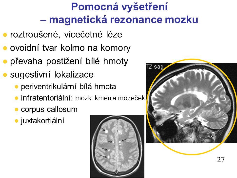 27 l roztroušené, vícečetné léze l ovoidní tvar kolmo na komory l převaha postižení bílé hmoty l sugestivní lokalizace l periventrikulární bílá hmota l infratentoriální: mozk.