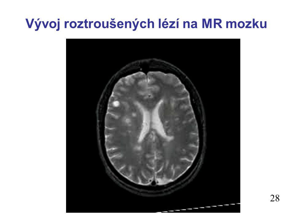 Vývoj roztroušených lézí na MR mozku 28