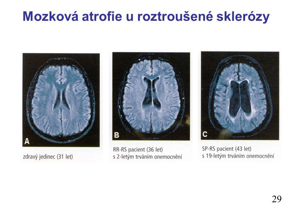 Mozková atrofie u roztroušené sklerózy 29