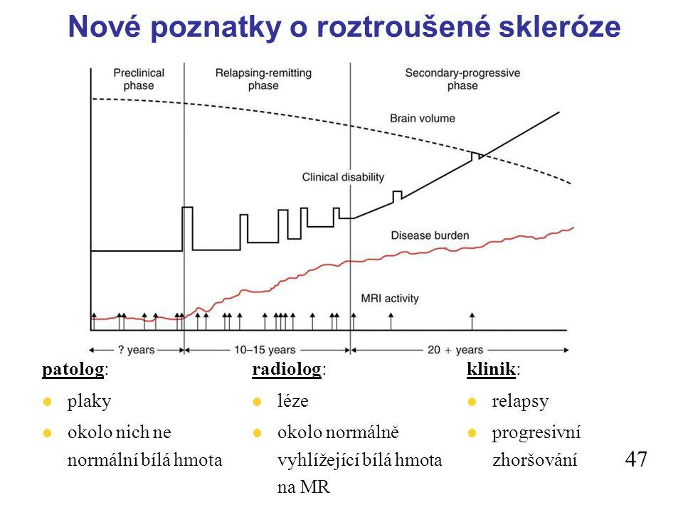 Nové poznatky o roztroušené skleróze patolog: l plaky l okolo nich ne normální bílá hmota radiolog: l léze l okolo normálně vyhlížející bílá hmota na MR klinik: l relapsy l progresivní zhoršování 47