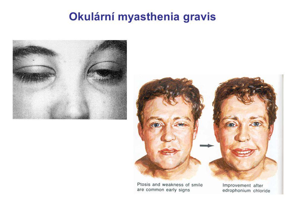 """Asociace mezi """"nervosvalovými"""" hlavovými nervy + svaly + příznaky hlava & krk: - oční svaly - diplopie, ptóza  n. III, IV, VI –  n. XII – jazyk  n."""