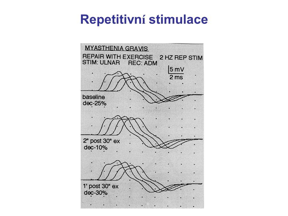 MYASTHENIA GRAVIS - diagnóza   charakteristický klinický obraz   EMG - při opakované stimulaci klesá amplituda svalového potenciálu   pozitivní