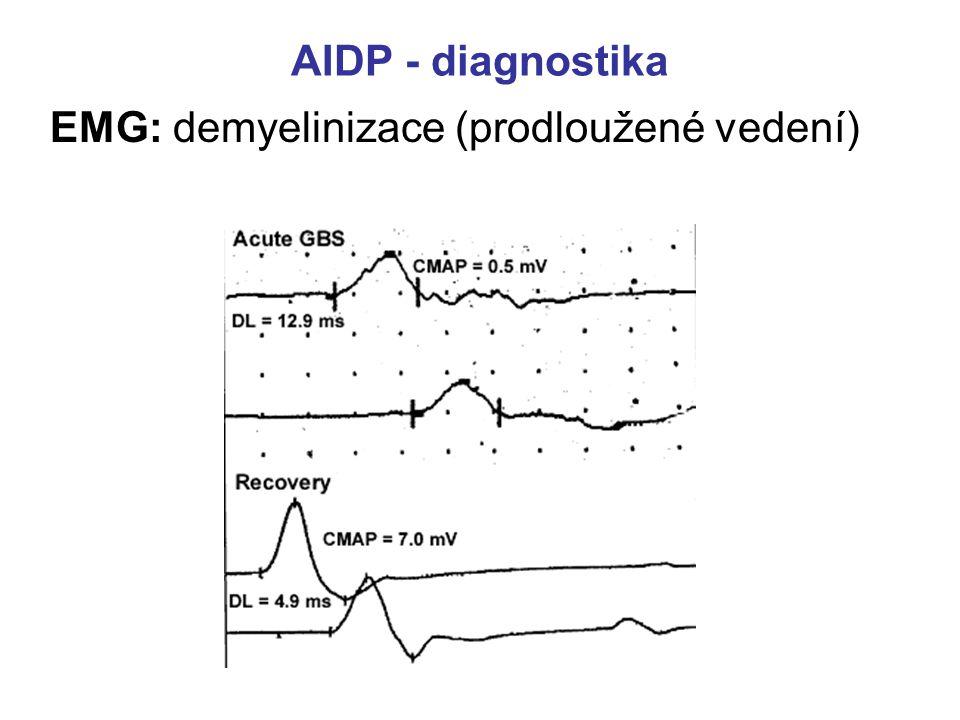 AIDP - diagnostika EMG: demyelinizace (prodloužené vedení)