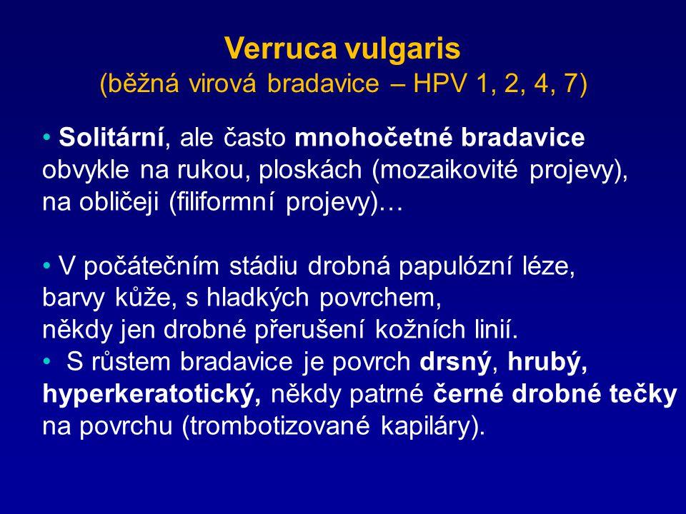Verruca vulgaris (běžná virová bradavice – HPV 1, 2, 4, 7) Solitární, ale často mnohočetné bradavice obvykle na rukou, ploskách (mozaikovité projevy),