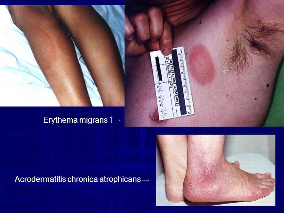 Erythema migrans  Acrodermatitis chronica atrophicans 