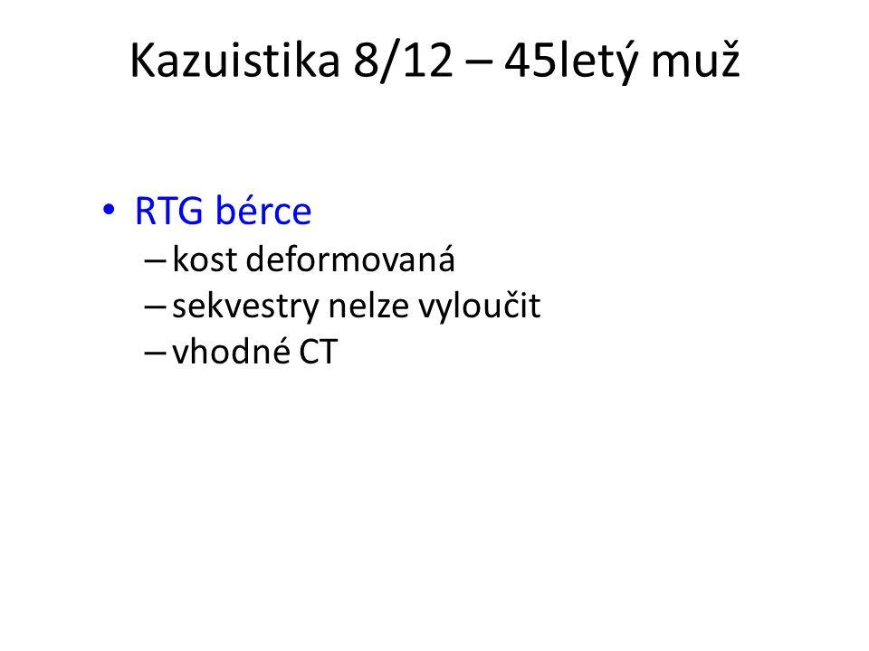 Kazuistika 8/12 – 45letý muž RTG bérce – kost deformovaná – sekvestry nelze vyloučit – vhodné CT