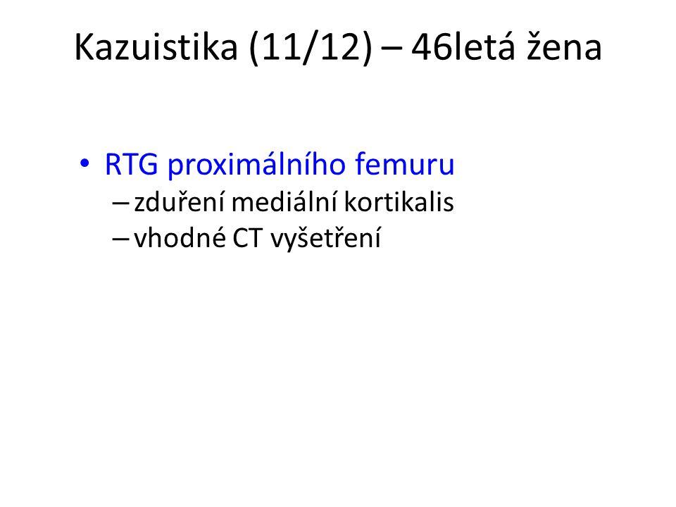Kazuistika (11/12) – 46letá žena RTG proximálního femuru – zduření mediální kortikalis – vhodné CT vyšetření