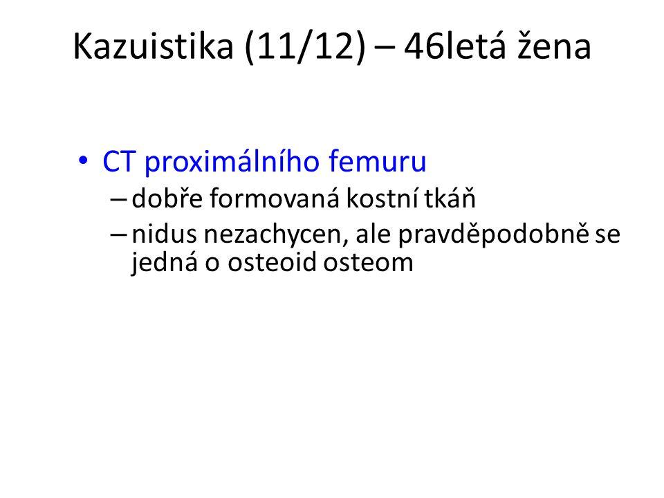 Kazuistika (11/12) – 46letá žena CT proximálního femuru – dobře formovaná kostní tkáň – nidus nezachycen, ale pravděpodobně se jedná o osteoid osteom