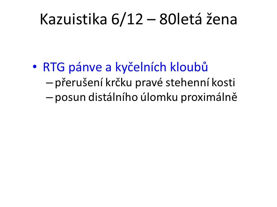 Kazuistika 6/12 – 80letá žena RTG pánve a kyčelních kloubů – přerušení krčku pravé stehenní kosti – posun distálního úlomku proximálně