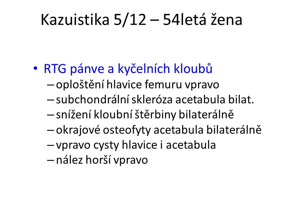 Kazuistika 5/12 – 54letá žena RTG pánve a kyčelních kloubů – oploštění hlavice femuru vpravo – subchondrální skleróza acetabula bilat. – snížení kloub