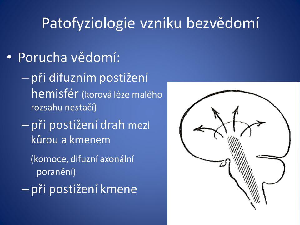 Patofyziologie vzniku bezvědomí Porucha vědomí: – při difuzním postižení hemisfér (korová léze malého rozsahu nestačí) – při postižení drah mezi kůrou