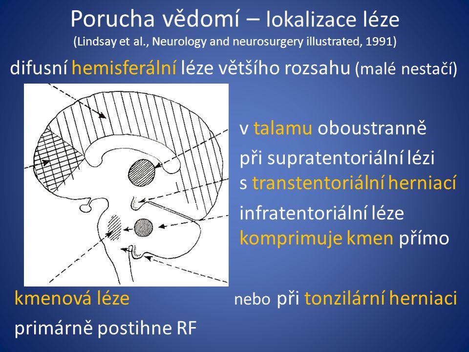 Porucha vědomí – lokalizace léze (Lindsay et al., Neurology and neurosurgery illustrated, 1991) difusní hemisferální léze většího rozsahu (malé nestačí) v talamu oboustranně při supratentoriální lézi s transtentoriální herniací infratentoriální léze komprimuje kmen přímo kmenová léze nebo při tonzilární herniaci primárně postihne RF