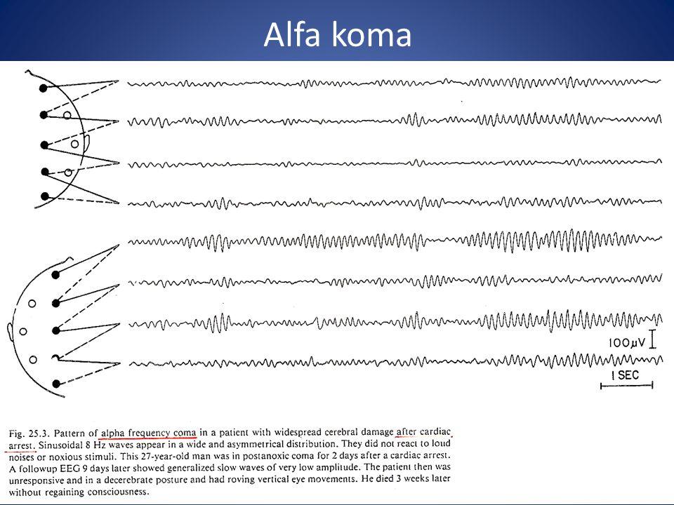 Alfa koma