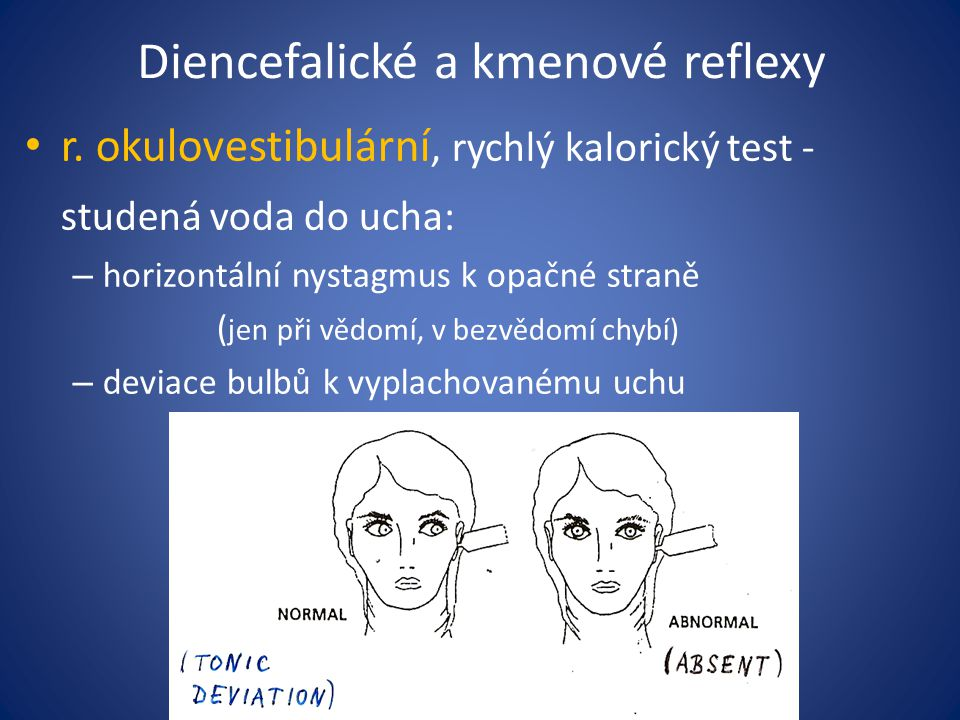 Diencefalické a kmenové reflexy r. okulovestibulární, rychlý kalorický test - studená voda do ucha: – horizontální nystagmus k opačné straně ( jen při