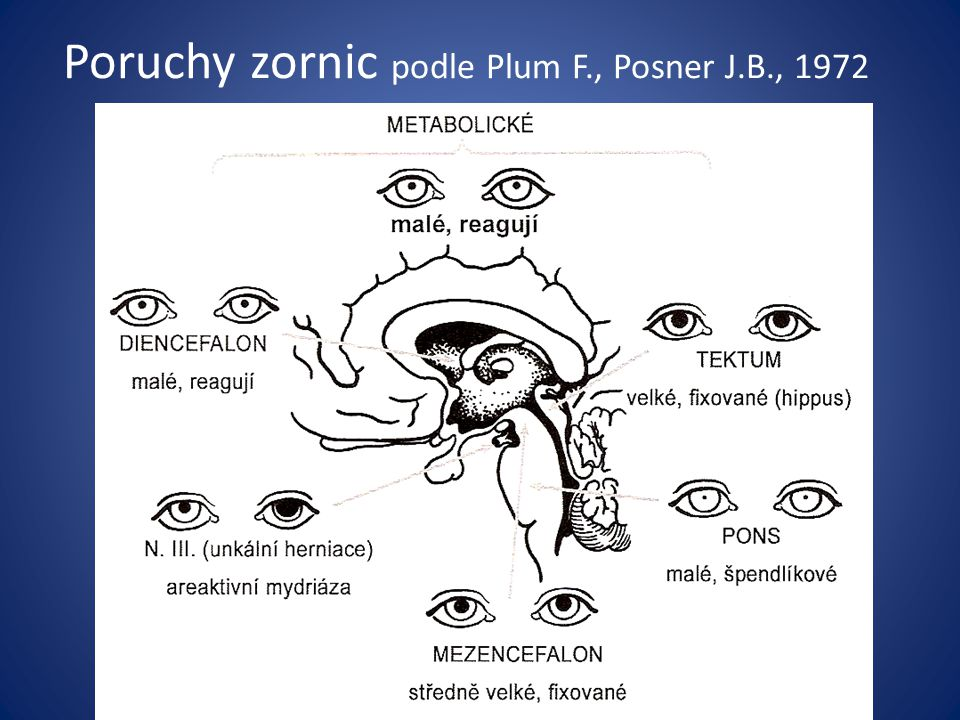 Poruchy zornic podle Plum F., Posner J.B., 1972