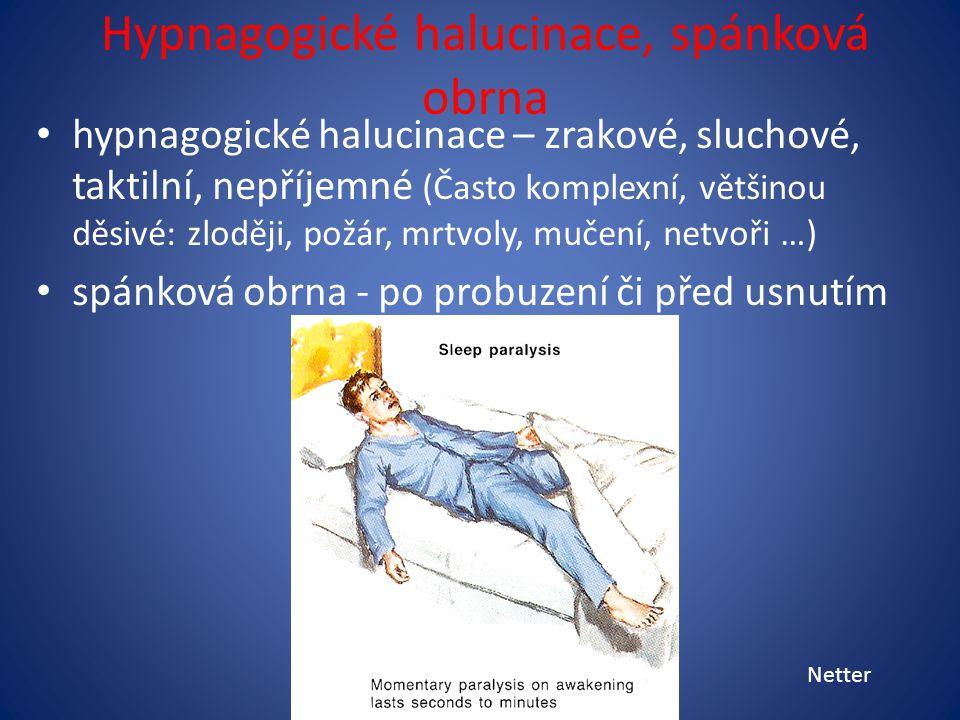 Hypnagogické halucinace, spánková obrna hypnagogické halucinace – zrakové, sluchové, taktilní, nepříjemné (Často komplexní, většinou děsivé: zloději, požár, mrtvoly, mučení, netvoři …) spánková obrna - po probuzení či před usnutím Netter