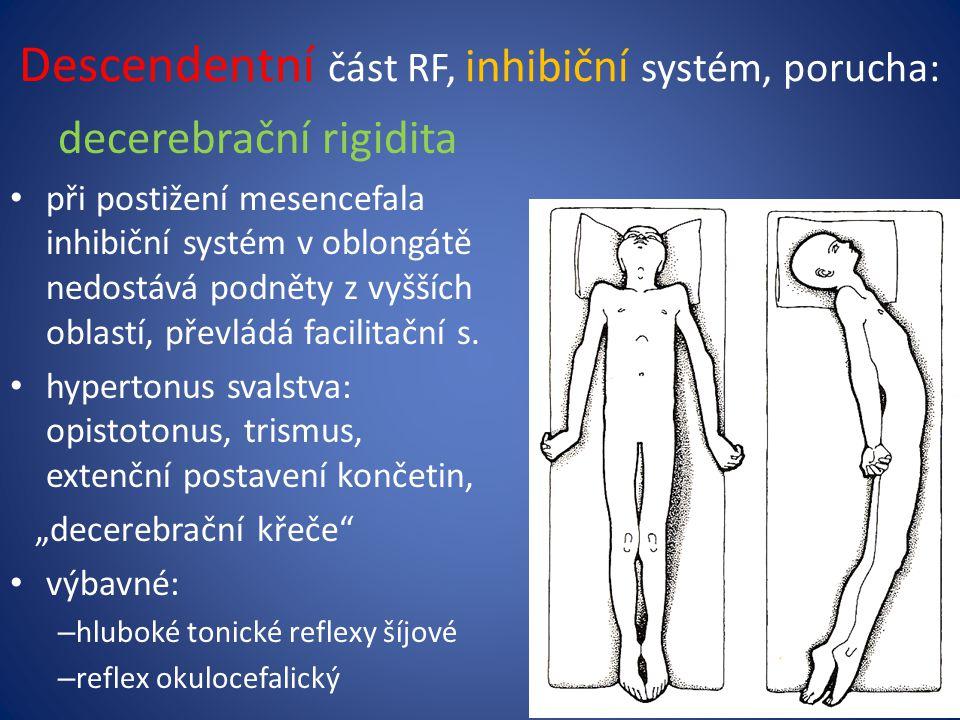 Descendentní část RF, inhibiční systém, porucha: decerebrační rigidita při postižení mesencefala inhibiční systém v oblongátě nedostává podněty z vyšších oblastí, převládá facilitační s.
