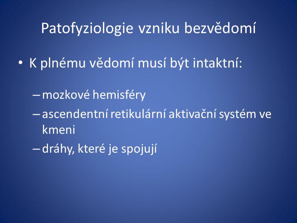 Patofyziologie vzniku bezvědomí K plnému vědomí musí být intaktní: – mozkové hemisféry – ascendentní retikulární aktivační systém ve kmeni – dráhy, kt