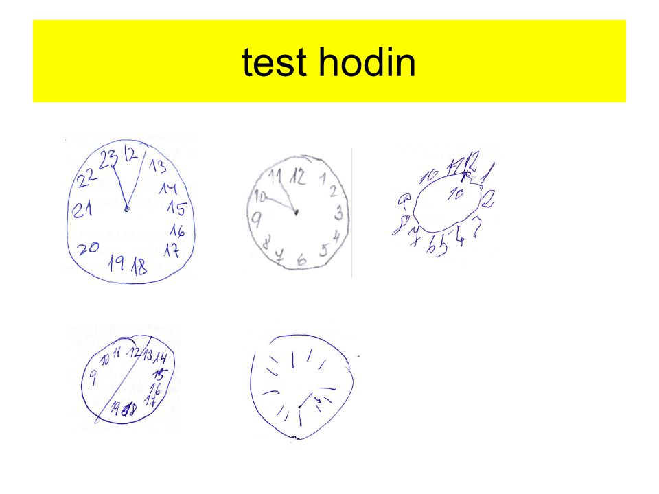 test hodin