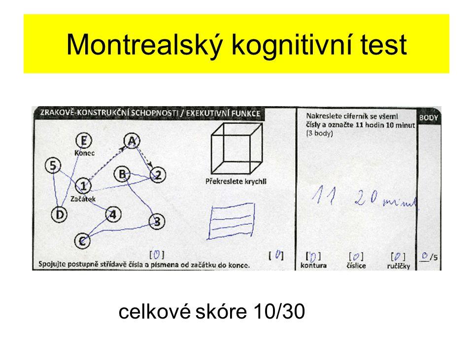 Montrealský kognitivní test celkové skóre 10/30