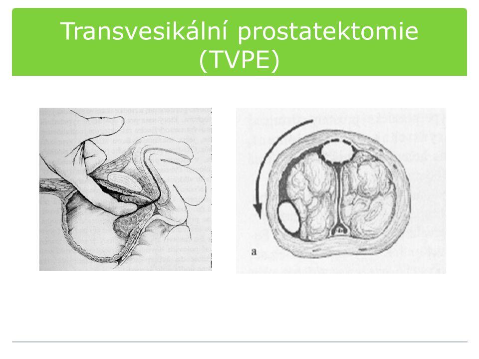 Transvesikální prostatektomie (TVPE)