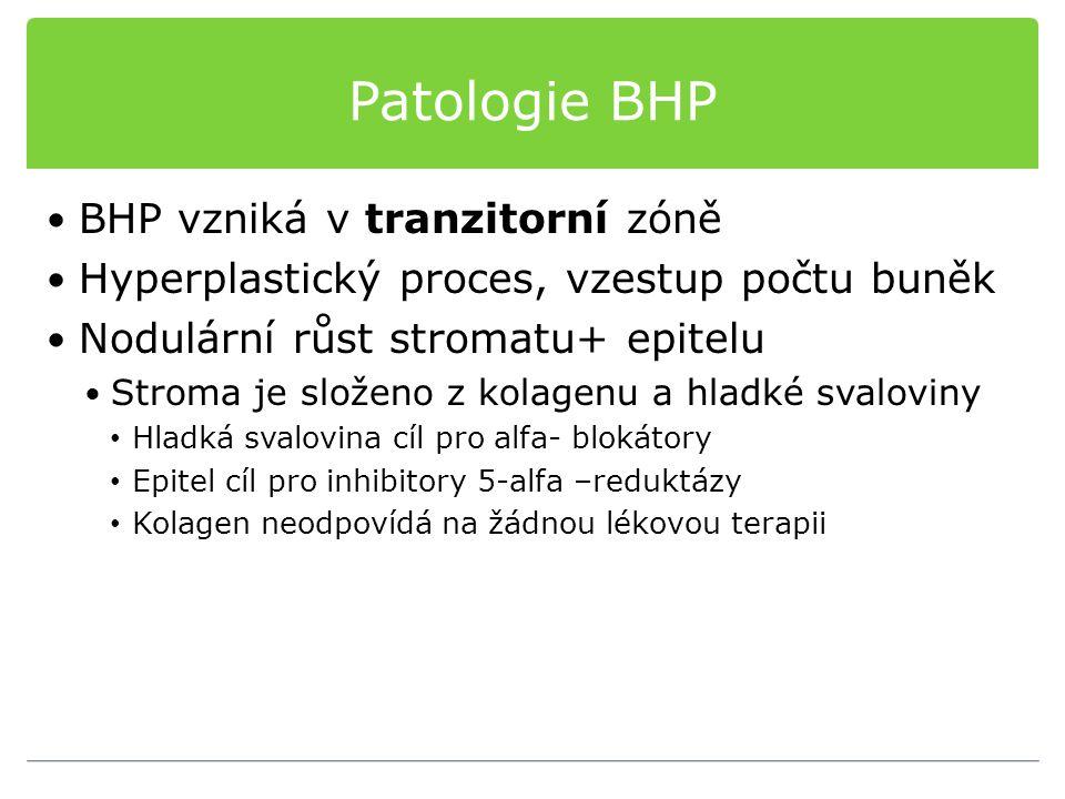 Patologie BHP BHP vzniká v tranzitorní zóně Hyperplastický proces, vzestup počtu buněk Nodulární růst stromatu+ epitelu Stroma je složeno z kolagenu a