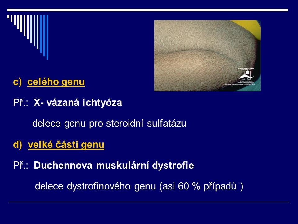 c) celého genu Př.: X- vázaná ichtyóza delece genu pro steroidní sulfatázu d) velké části genu Př.: Duchennova muskulární dystrofie delece dystrofinov
